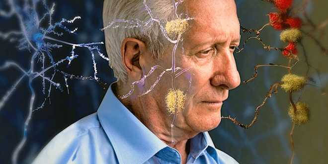 Alzheimer declin mémoire